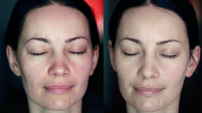 Реальные отзывы покупателей о «Skin Matrix»